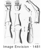 #1481 Photo of Prosthetic Arms and Hands by JVPD