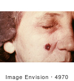 #4970 Stock Photography Of An Woman With An Anthrax Skin Lesion On The 13th Day