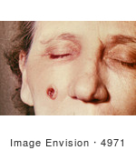 #4971 Stock Photography Of An Woman With An Anthrax Skin Lesion On The 5th Day