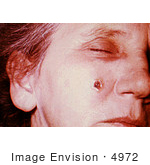 #4972 Stock Photography Of An Woman With An Anthrax Skin Lesion On The 8th Day