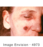 #4973 Stock Photography Of An Woman With An Anthrax Skin Lesion On The 11th Day