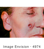 #4974 Stock Photography Of An Woman With An Anthrax Skin Lesion On The 6th Day