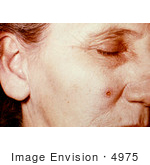#4975 Stock Photography Of An Woman With An Anthrax Skin Lesion On The 4th Day