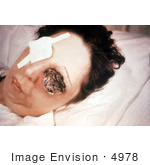 #4978 Stock Photography of a Patient On the 25th Day of an Anthrax Infection Involving Her Eye by JVPD
