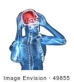 #49855 Royalty-Free (Rf) Illustration Of A 3d Transparent Blue Human Body With A Migraine - Version 5