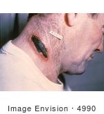 #4990 Stock Photography Of A Man With A Cutaneous Anthrax Lesion On His Neck