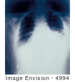 #4994 Stock Photography Of A Radiograph Of Anthrax Inhalation