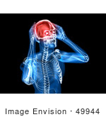 #49944 Royalty-Free (Rf) Illustration Of A 3d Clear Human Being Character With A Migraine - Version 1