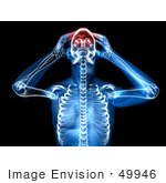 #49946 Royalty-Free (Rf) Illustration Of A 3d Clear Human Being Character With A Migraine - Version 3