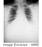 #4995 Stock Photography Of The Chest X-Ray Of A 46 Year Old Man Diagnosed With The Anthrax Disease