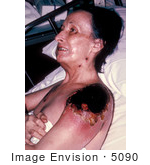 #5090 Stock Photography Of A Female Patient With Vaccinia Gangrenosum