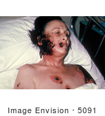 #5091 Stock Photography of a Woman with Progressive Vaccinia Gangrenosum by JVPD
