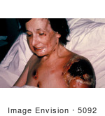 #5092 Stock Photography Of A Patient With Progressive Vaccinia