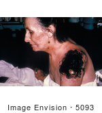#5093 Stock Photography of an Ill Patient with Life Threatening Progressive Vaccinia Gangrenosum by JVPD