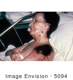 #5094 Stock Photo Of Progressive Vaccinia Gangrenosum On The Shoulder Of A Woman