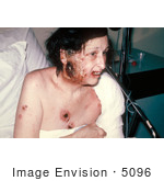 #5096 Picture of a Woman Showing Severe Complications of a Smallpox Vaccination by JVPD