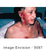 #5097 Picture Of A Severe And Progressive Vaccinia Gangrenosum Complications From A Smallpox Vaccination