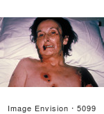 #5099 Stock Photography Of A Female Patient With Progressive Vaccinia From A Smallpox Vaccination