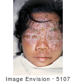 #5107 Stock Photography of a 28 Year Old Woman with Eczema Vaccinatum by JVPD