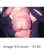 #5120 Stock Photography of a Child that had an Allergic Reaction to a Smallpox Vaccination by JVPD