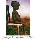 #6769 Picture of a Child with Kwashiorkor Disease from Severe Dietary Protein Deficiency by KAPD