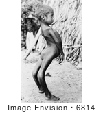 #6814 Mexican Boy With Birth Defect by JVPD