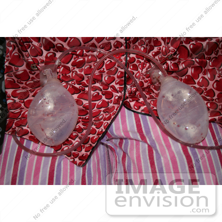 #10920 Stock Photo of Breast Reduction Patient's Drainage Tubes by Kenny Adams