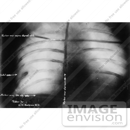 #27638 Stock Photo of an Xray Of The Bullet Inside President Theodore Roosevelt After John Schrank Shot Him On October 14th 1912 by JVPD