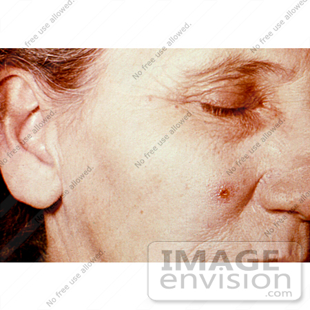 #4975 Stock Photography of an Woman with an Anthrax Skin Lesion on the 4th Day by JVPD