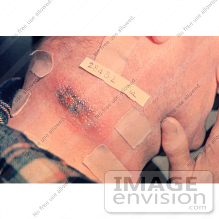 #4989 Stock Photography of Cutaneous Anthrax Lesion by JVPD