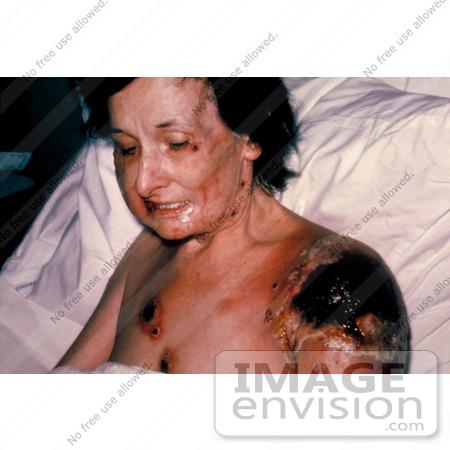 Severe Smallpox
