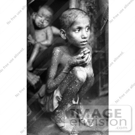 #6767 Picture of a Kid with Smallpox Disease by KAPD