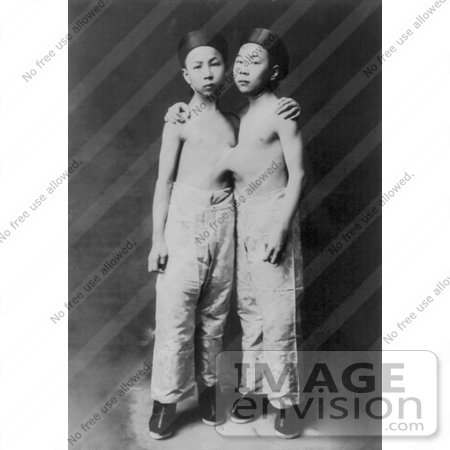 #6812 Korean Siamese Twins by JVPD