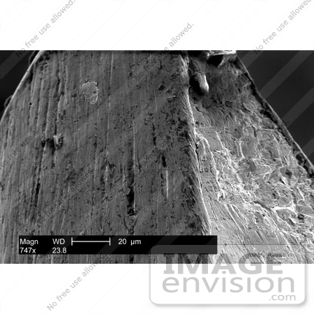 #7314 Picture of the Prongs of a Bifurcated Smallpox Vaccination Needle by KAPD