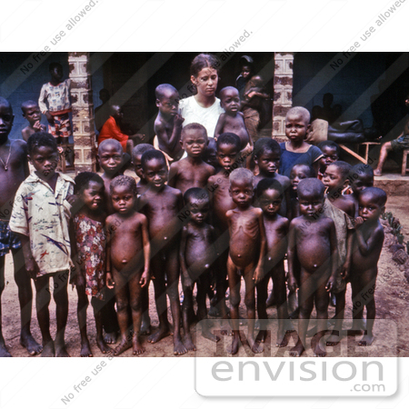 #7478 Picture of a Nurse Standing with a Group of African Children Showing Symptoms of the Protein-Deficiency Disease Kwashiorkor by KAPD