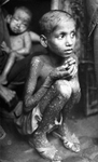 Free Picture of Kid with Smallpox Disease