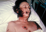 Woman with Progressive Vaccinia Gangrenosum