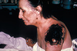 Ill Patient with Life Threatening Progressive Vaccinia Gangrenosum