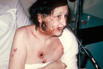 Hospitalized Woman Showing Severe Complications of a Smallpox Vaccination