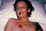 Female Patient with Progressive Vaccinia from a Smallpox Vaccination