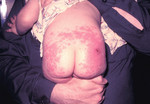 Child that had an Allergic Reaction to a Smallpox Vaccination and Developed a Severe and Toxic Rash On Her Buttocks