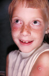 Child with a Case of Autoinoculation of Her Cheek after being Vaccinated with Vaccinia