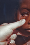 CDC EIS Officer Examining the Palpebral Conjunctiva of a Nigerian Child with Anemia Symptoms