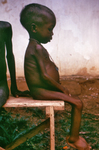 Child with Kwashiorkor Disease from Severe Dietary Protein Deficiency