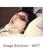#4977 Stock Photography of a Patient On the 5th Day of an Anthrax Infection In Her Eye by JVPD
