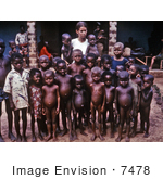 #7478 Picture Of A Nurse Standing With A Group Of African Children Showing Symptoms Of The Protein-Deficiency Disease Kwashiorkor